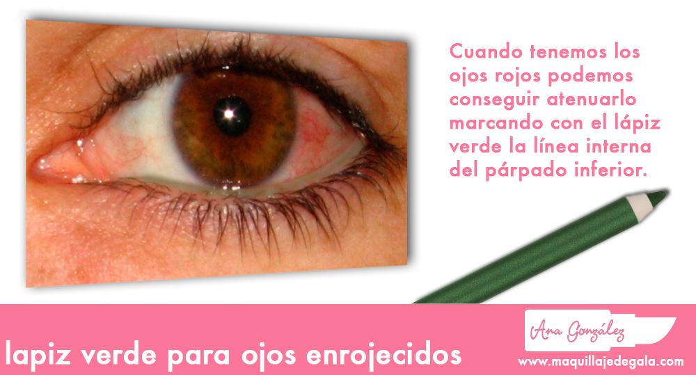 ojosrojos